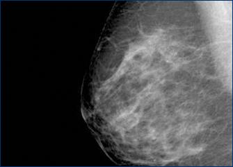 Examen mamario estafa angelina