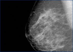 mamografia-12